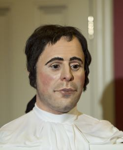 picture shows the reconstructed head of Burns